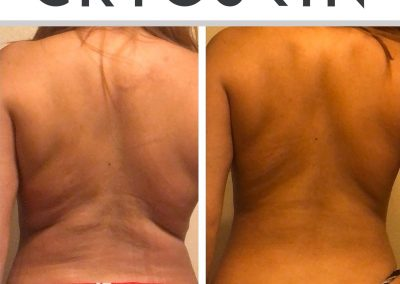 1 Session New Ad Back Real Results!