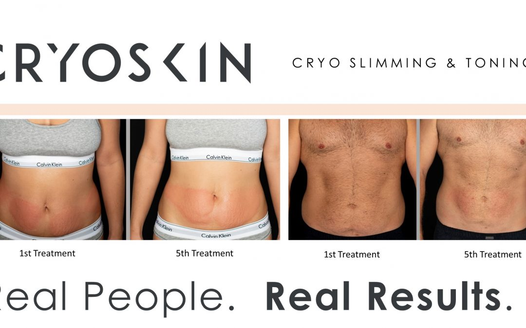 Before and After results after 5 treatments of Cryoskin. Book now! Call 509-921-9800