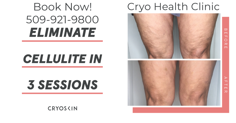 Summer legs are made here at Cryo Health Clinic! Come and reduce them dipples and loose skin with cryoskin!
