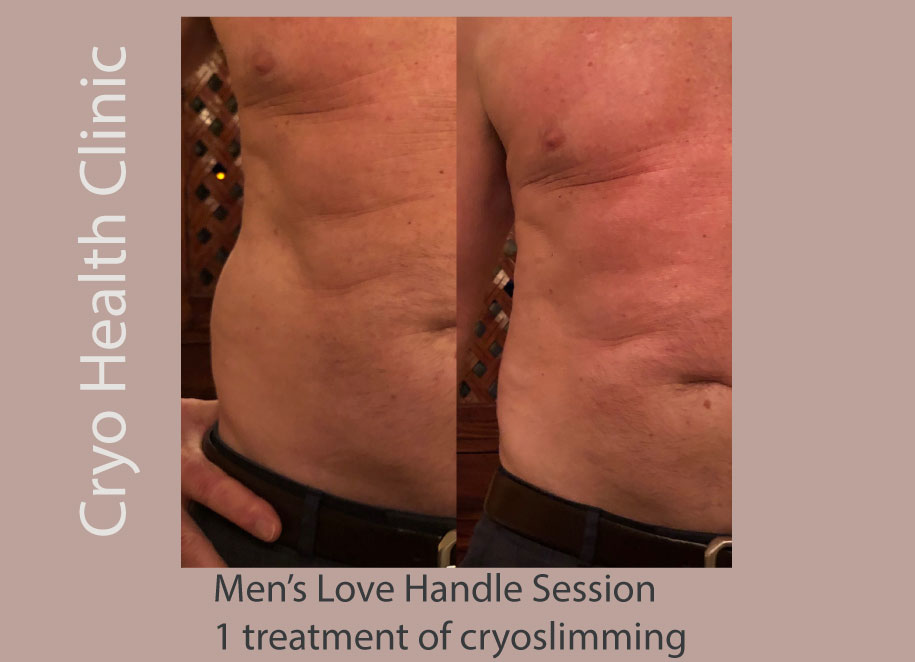 Men get it so easy! Only one session and he lost almost all his love handles!